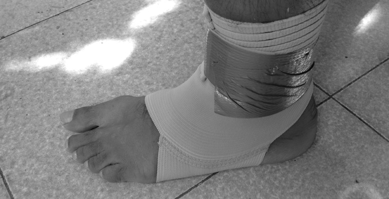 Is windsufing with a sprained ankle a good idea?